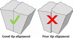 Jaw alignment